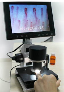 Mesin periksa salur darah tersumbat