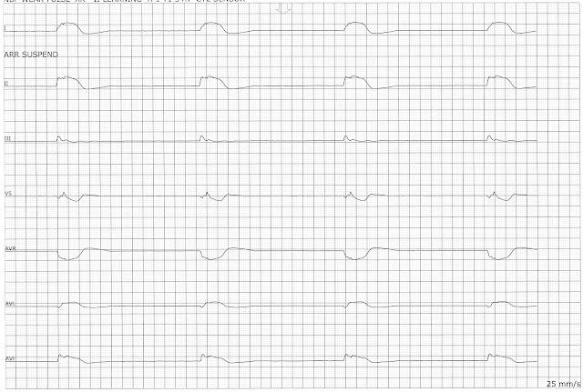 Float Nurse: Agonal Rhythm
