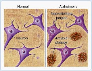 savoir tout sur La maladie d'Alzheimer