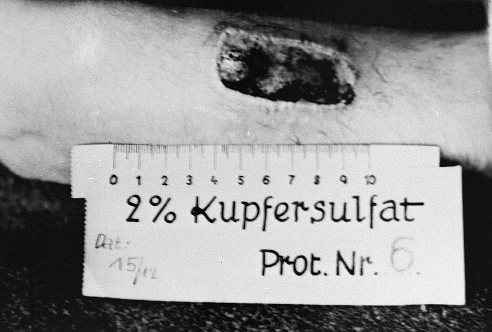 A victim of Nazi medical experimentation. A victim's arm shows a deep burn from phosphorus at Ravensbrueck, Germany, in November of 1943. The photograph shows the results of a medical experiment dealing with phosphorous that was carried out by doctors at Ravensbrueck. In the experiment, a mixture of phosphorus and rubber was applied to the skin and ignited. After twenty seconds, the fire was extinguished with water. After three days, the burn was treated with Echinacin in liquid form. After two weeks the wound had healed. This photograph, taken by a camp physician, was entered as evidence during the Doctors Trial at Nuremberg.
