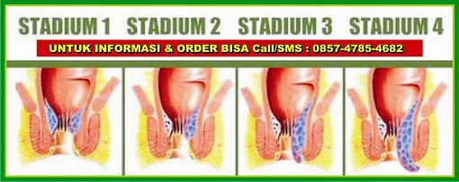 stadium stop wasir, stadium stop ambeien, stadium stop hemoroid, stadium stop nyeri anus