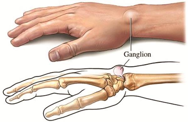 Pengobatan Alternatif Ganglion