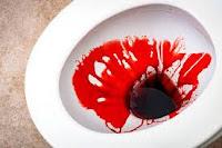 Kenapa Tinja Bercampur Darah Saat BAB