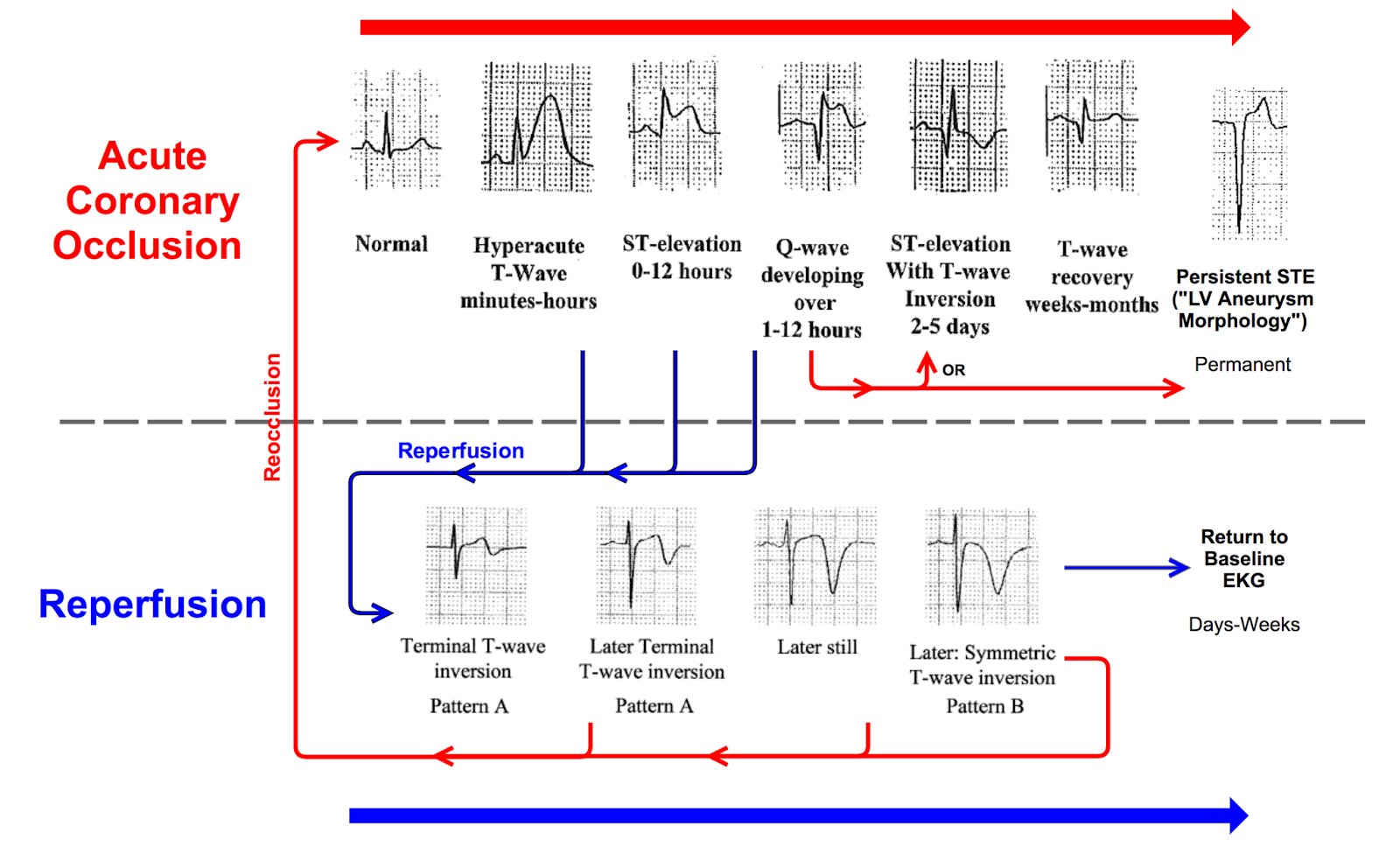 Dr smiths ecg blog shoulder pain after lifting a heavy box diagnosis may be missed or delayed because his st segments are not appreciated as different from his baseline ecg which will now have ste forever pooptronica Images