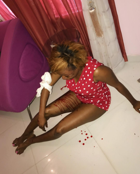 Foston Utomi's wife beaten by him