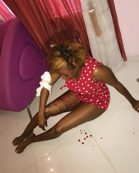 Foston Utomi's wife beaten by him