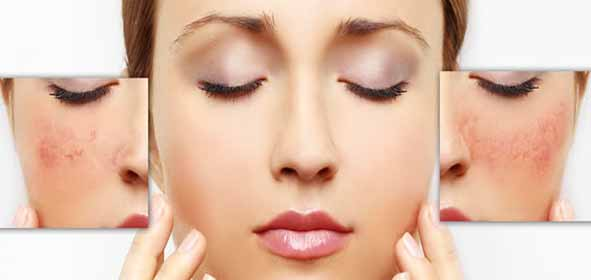 Cool The Skin Rosacea Treatment