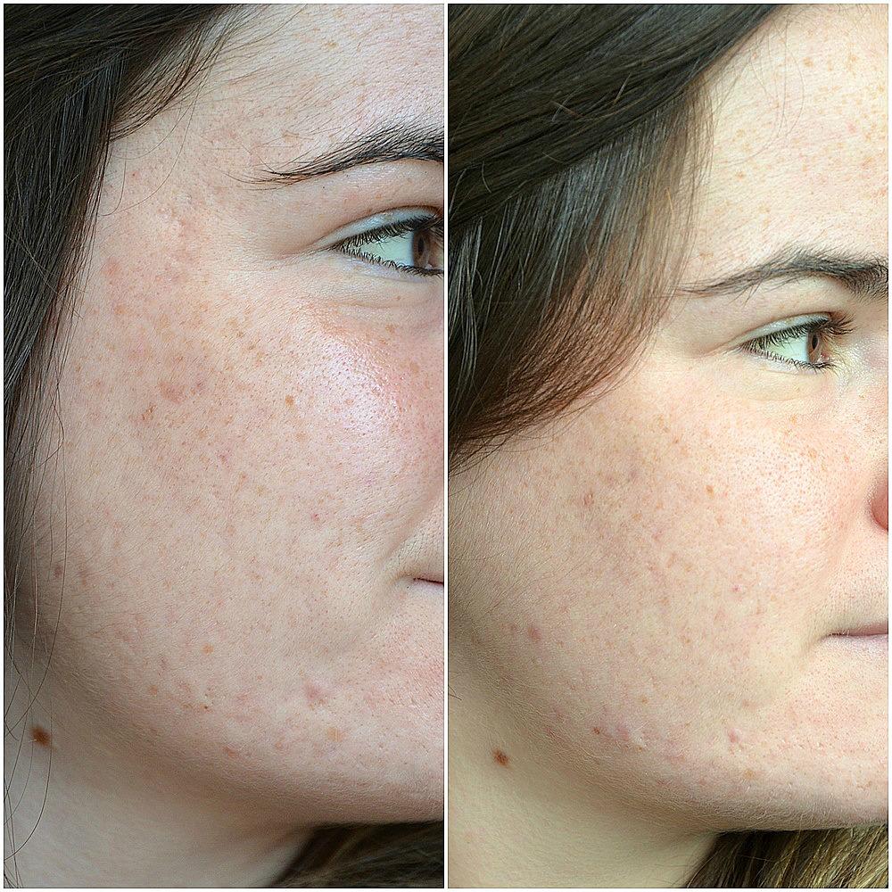 traitement contre l'acné comparaison entre mai et juin 2017 joue droite