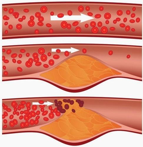 Obat Kolesterol Paling Ampuh