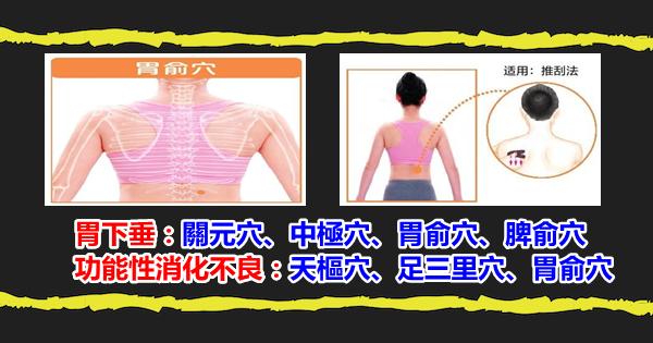 中醫說:刮痧幾個穴位調理胃炎、胃下垂及下肢浮腫, 刮痧助你健康(功能性消化不良)