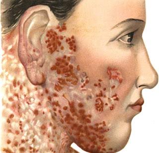 penyebab lupus