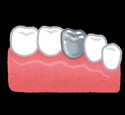 銀歯のイラスト(歯の治療)