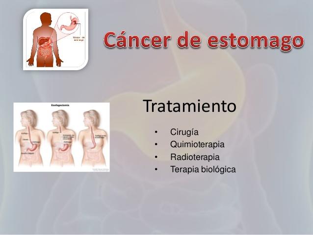 Tratamiento quimioterapia cancer de estomago