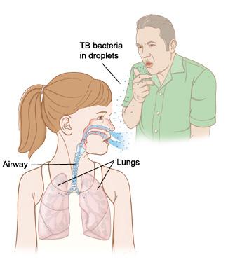 Cara Menyembuhkan TBC Dengan Cepat Yang Alami Dan Manjur