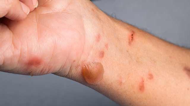 علاج الحروق الجلدية بالأعشاب