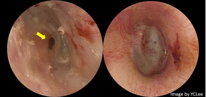 慢性耳膜穿孔