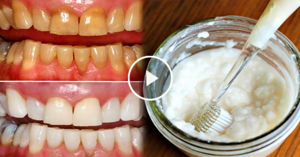 Check out this home made mouthwash that can remove tartar in 1 minute!