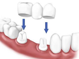 Bọc răng sứ quận 10 với bác sĩ Mai Xuân Ngọc q10