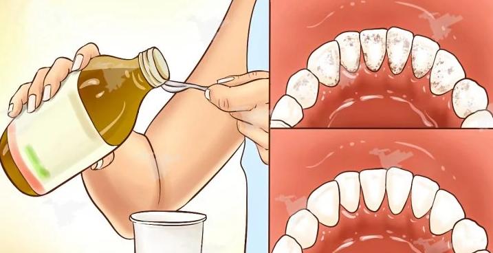 Goodbye To Bad Breath, Dental Plaque And Tartar