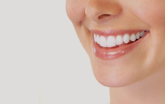 Why do Missing Teeth Change your Facial Aesthetic?