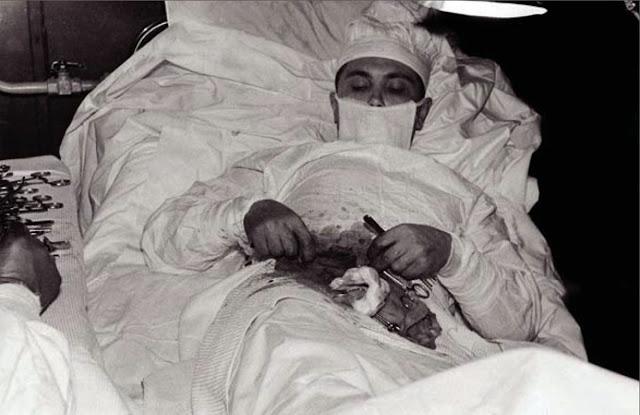 Doktor Ini Membedah Dirinya Sendiri untuk membuang appendiks