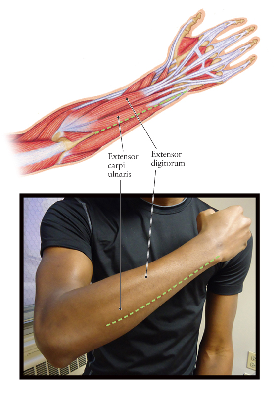 Reverse Adipofascial Flap After Resection of a Malignant ... |Dorsal Arms