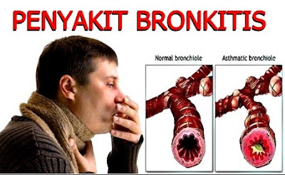 6 Obat Alami Untuk Mengatasi Penyakit Bronkitis