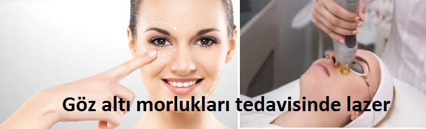 gozalti-morluklari-lazer-tedavisi