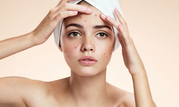 How To Fight Acne In Your Home