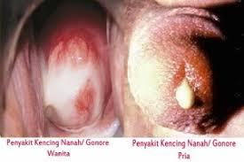obat keluar lendir bau dan terasa nyeri di kelamin