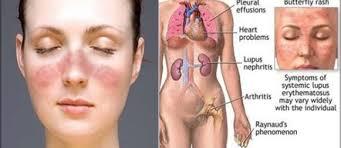 Phương pháp hỗ trợ điều trị bệnh lupus ban đỏ hệ thống