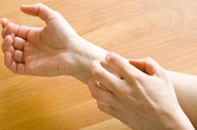 Tips Mengatasi Alergi Kulit dan Mencegahnya