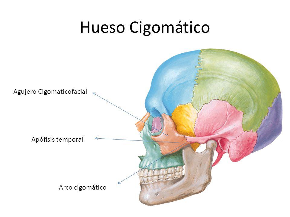 ARCO CIGOMATICO2: ARCO CIGOMATICO