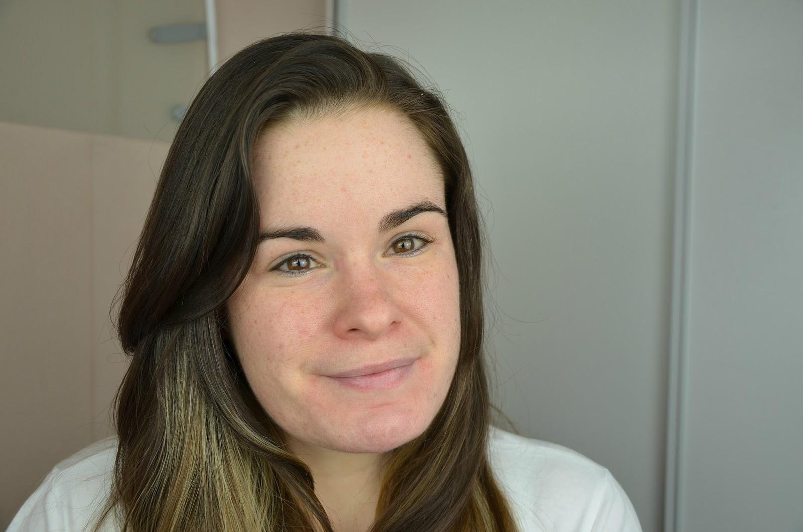 bilan du quatrième mois de traitement contre l'acné