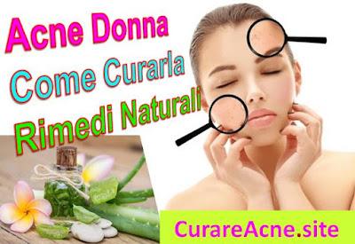 acne-donna-come-curarla-rimedi-naturali-aloevera