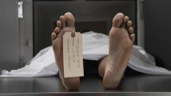 Resultado de imagem para autopsia