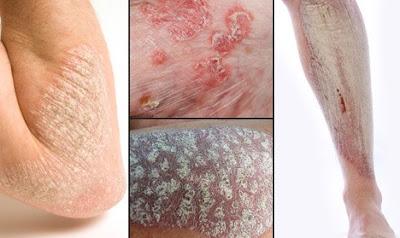 Berbagai Macam Jenis Penyakit Kulit Berbahaya
