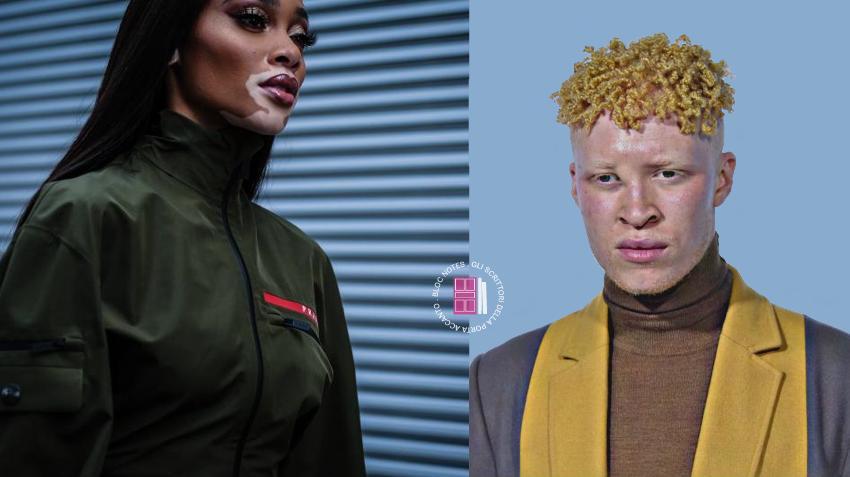 Winnie Harlow e Shaun Ross: bellezze «non convenzionali»