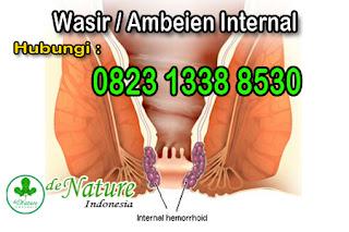 obat-wasir-ambeien-internal-benjolan-eksternal-paling-ampuh-di-apotik