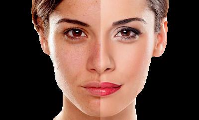 Risques d'éclaircissement de la peau