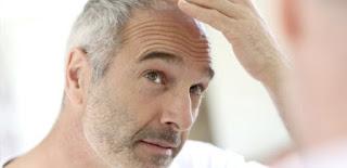 Saç Beyazlamasını Nasıl Önleriz