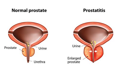 la prostata provoca infiammazzioni agli artist