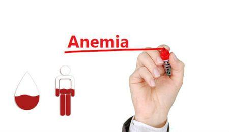 Cara Mengobati Anemia Secara Alami