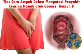 Image of Penyebab dan gejala penyakit kelamin kencing nanah pada wanita