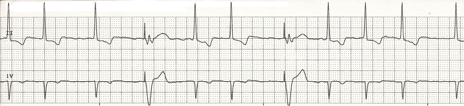 Single chamber pacemaker atrial fibrillation
