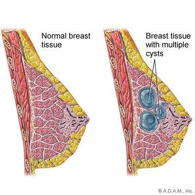 ubat hilangkan cyst payudara