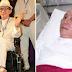 Mengenal Penyakit Stroke Yang Menyebabkan Robby Tumewu Meninggal