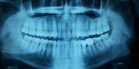 dientes, odontología, alternativas