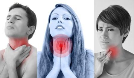 cara mengobati sakit radang tenggorokan secara alami