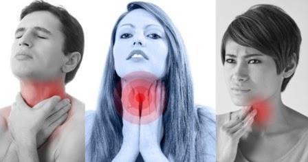 11 Cara Mengobati Sakit Radang Tenggorokan Secara Alami ...